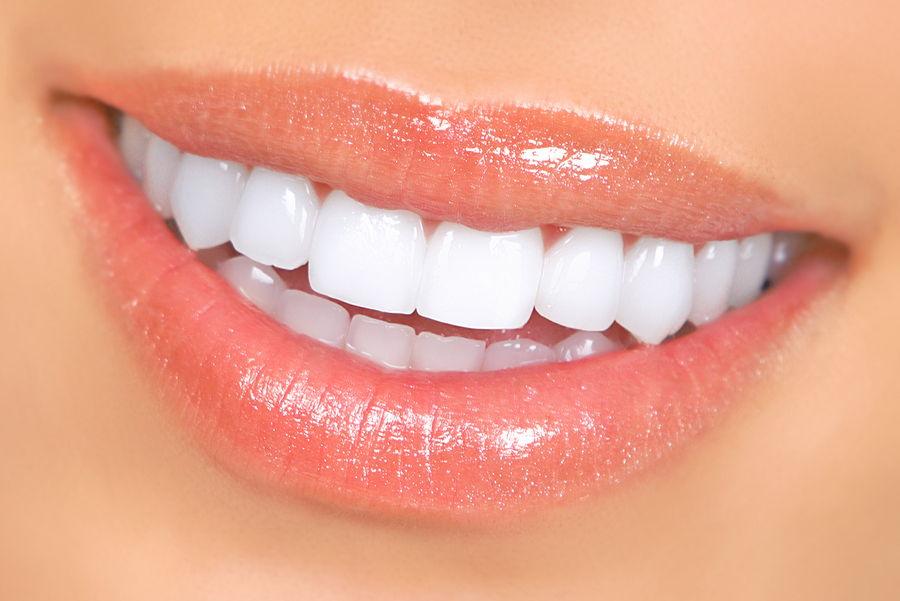 dental bonding image