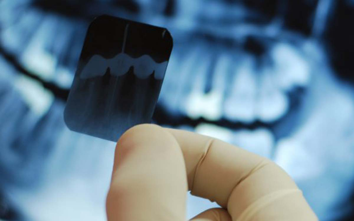 Conservative Periodontal Treatment xray image